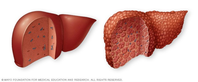 Autoimmune Thyroid and Liver Disease